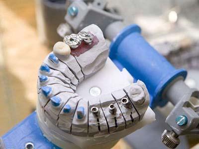 口腔工艺技术专业-口腔模型制作